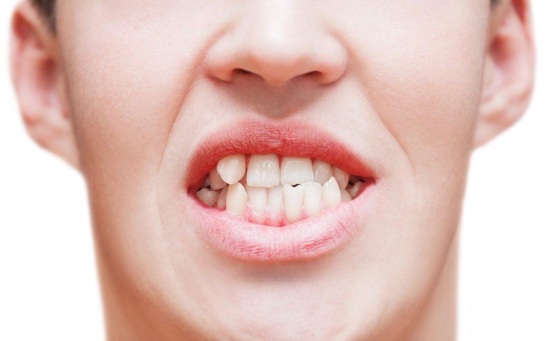 I'm not vain. Why should I straighten my teeth?