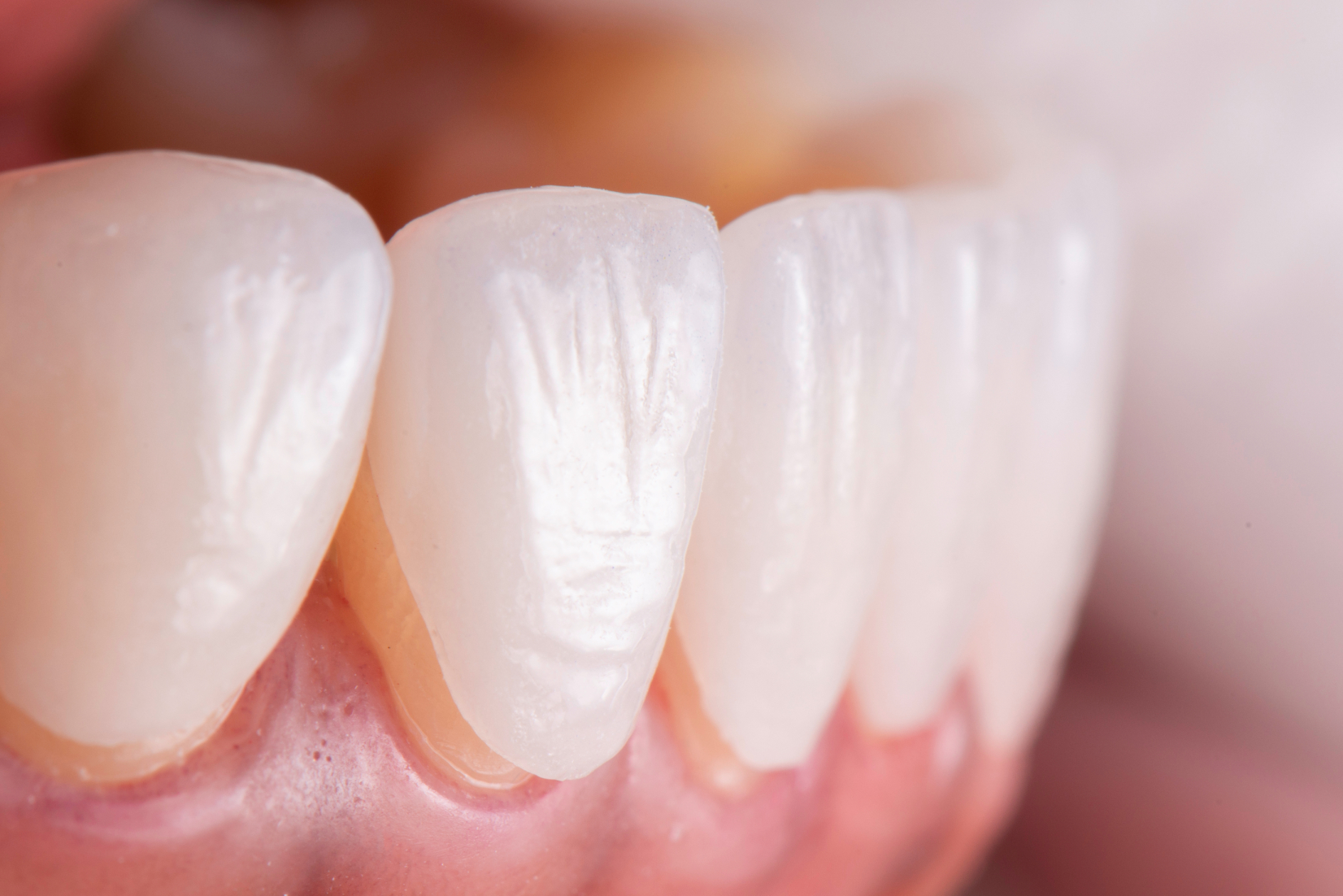 Generally, there are 2 types of veneers available: