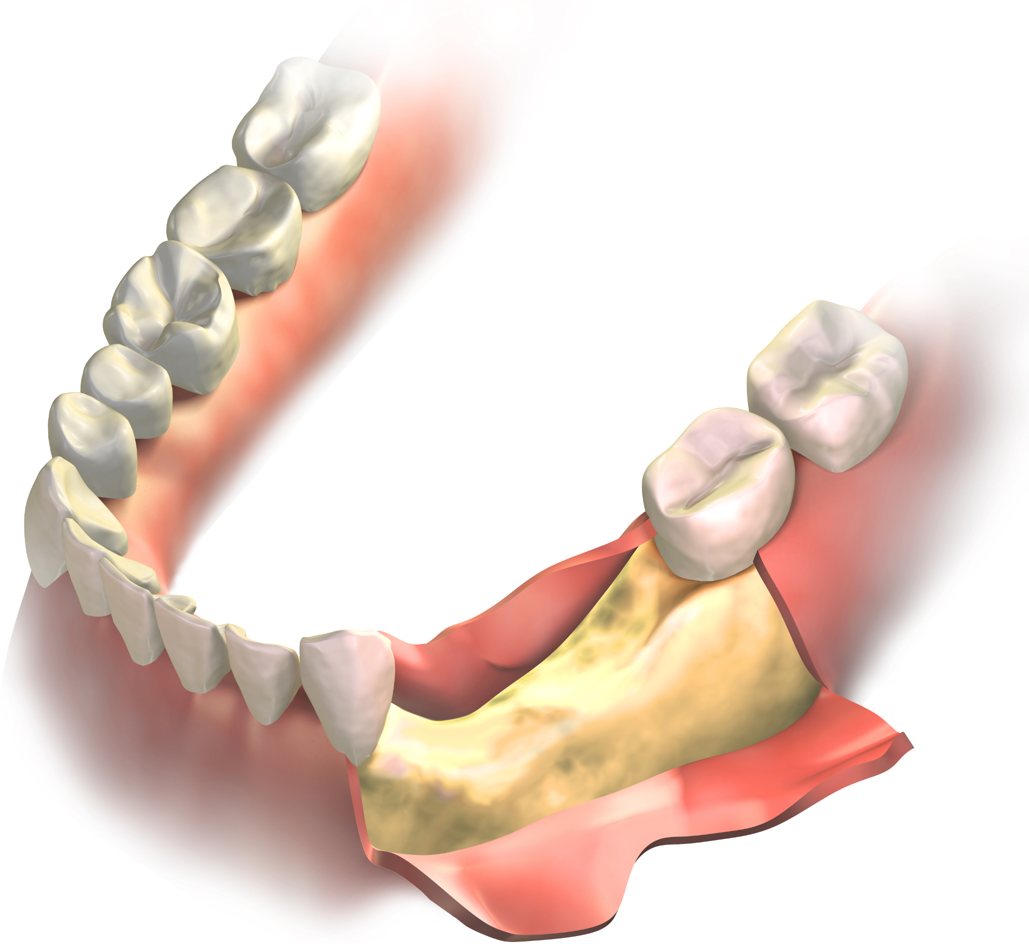Bone loss on lower jaw (gums opened to expose bone before grafting surgery)