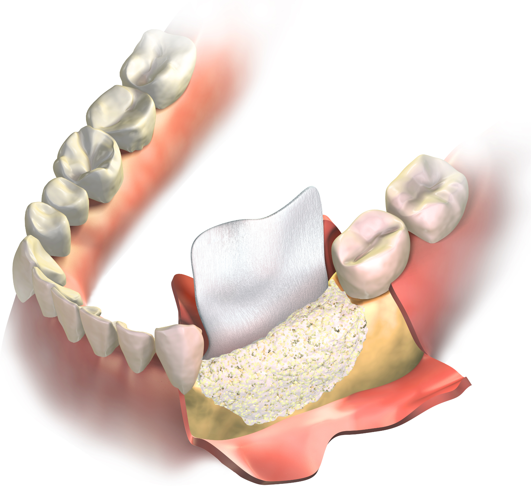 Regenerative collagen membrane placed between the gums and bone graft