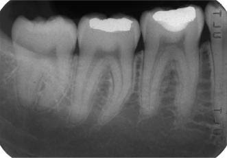 Periapical (PA) X-ray
